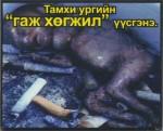 Mongolia 2014 ETS baby - dead fetus, graphic