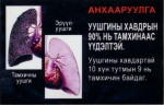 Mongolia 2014 Health Effects lung - diseased organ