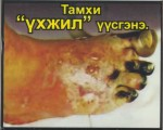 Mongolia 2014 Health Effects vascular system - gangrene