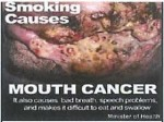 Suriname 2014 - Health Effects mouth - cancer (back)