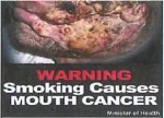 Suriname 2014 - Health Effects mouth - cancer (front)