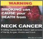 Suriname 2014 - Health Effects other - neck cancer (back)