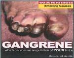 Suriname 2014 Health Effects vascular system - gangrene (back)