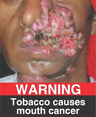 India | Tobacco Labelling Regulations