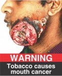 India 2015 Health Effects Mouth - mouth cancer, gross jaw