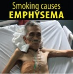 Philippines 2014 Health Effects Lung - emphysema (English)
