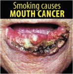 Philippines 2014 Health Effects Mouth - mouth cancer, gross (English)