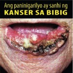 Philippines 2014 Health Effects Mouth - mouth cancer, gross (Filipino)
