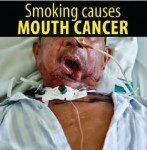 Philippines 2014 Health Effects Mouth - mouth cancer, lived experience (English)