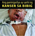 Philippines 2014 Health Effects Mouth - mouth cancer, lived experience (Filipino)