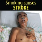 Philippines 2014 Health Effects Stroke - lived experience (English)