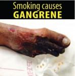 Philippines 2014 Health Effects Vascular System - gangrene, gross (English)