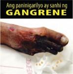 Philippines 2014 Health Effects Vascular System - gangrene, gross (Filipino)