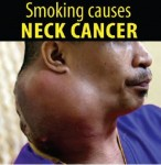 Philippines 2014 Health Effects other - neck cancer, lived experience (English)