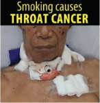 Philippines 2014 Health Effects other - throat cancer, lived experience (English)