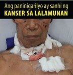 Philippines 2014 Health Effects other - throat cancer, lived experience (Filipino)