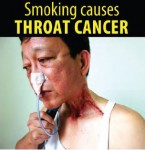 Philippines 2014 Health Effects other - throat cancer2, lived experience (English)