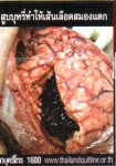 Thailand 2014 Health Effects heart - diseased organ, gross