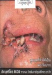 Thailand 2014 Health Effects mouth - mouth cancer, gross