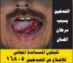 Egypt 2012 Health Effects Mouth - tongue cancer, lived experience, gross