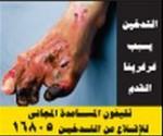 Egypt 2012 Health Effects Vascular - gangrene