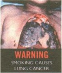 Brunei 2012 Health Effects Lung - lung cancer, diseased organ (English)