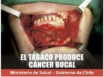 Chile 2011 Health Effects Mouth - gross, oral cancer