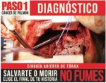 Chile 2013 1 Health Effects Lung - diagnosis, chest surgery