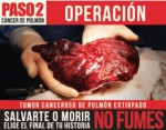 Chile 2013 2 Health Effects Lung - operation, lung cancer