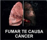 Ecuador 2013 Health Effects lung - lung cancer, diseased organ