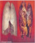 2013 Fiji Health Effect lung - lung cancer, diseased lung