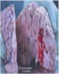 2013 Fiji Health Effect stroke - brain, risk