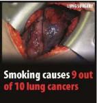 EU 2016 Health Effects lung - lung cancer, surgery