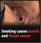 EU 2016 Health Effects mouth - mouth and throat cancer, lived experience