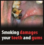 EU 2016 Health Effects mouth - tooth and gum damage