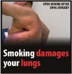 EU 2016-Set 2-Health Effects lung - lung damage, wound