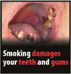 EU 2016-Set 2-Health Effects mouth - tooth and gum damage