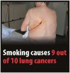 EU 2016-Set 3-Health Effects lung - lung cancer, scar