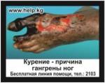 Kyrgyzstan 2016 Health Effects Vascular System - gangrene, diseased foot, gross