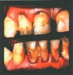 Madagascar 2015  Health Effects mouth - diseased organ, gross