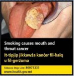 Malta 2016 Health Effects Mouth - Tongue cancer, gross - set 2