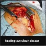 Mauritius 2009 Health Effects Heart - open heart surgery - Eng