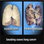 Mauritius 2009 Health Effects Lung - healthy vs unhealthy comparison, lung cancer, EN
