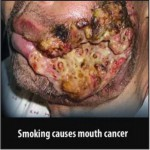 Mauritius 2009 Health Effects Mouth - mouth cancer, gross_EN