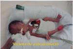 Mexico 2011 ETS baby - premature birth