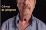 Mexico 2012 Health Effects other - throat cancer, lived experience
