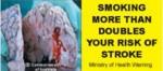 NZ 2008 Health Effects stroke - diseased organ, brain, stroke, gross_front