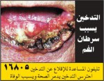 Egypt 2014 Health Effects Mouth - lip cancer, gross