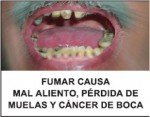 Panama 2009 Health Effects Mouth - mouth cancer, tooth loss, bad breath