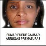 Panama 2012 Wrinkles - premature aging